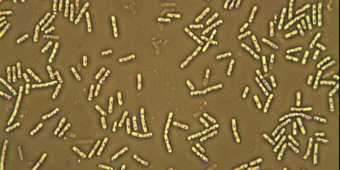 大肠杆菌光学显微镜下细胞结构图